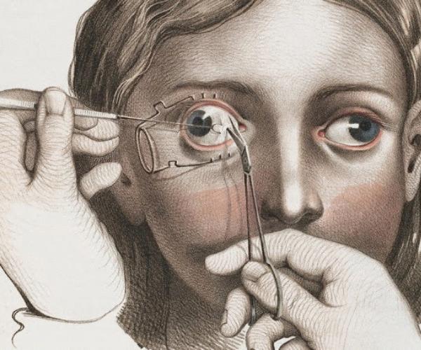 麻酔なしで行われていた拷問レベルの手術・治療法を紹介!